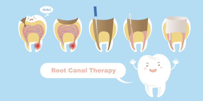 Is a Root Canal Worthy of the Anxiety?
